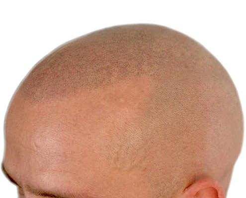 scalp-micropigmentation-vancouver